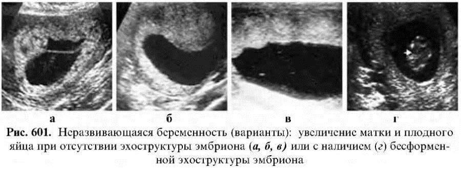 Беременность после эко. что происходит в организме?