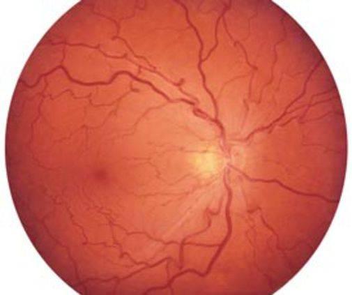 Что такое диабетическая непролиферативная ретинопатия сетчатки?