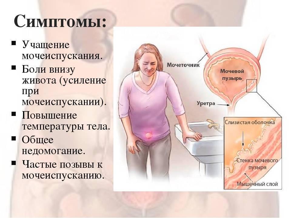 Боль при мочеиспускании при беременности