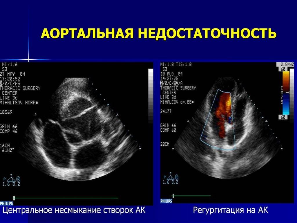 Лечение хламидийной инфекции во время беременности