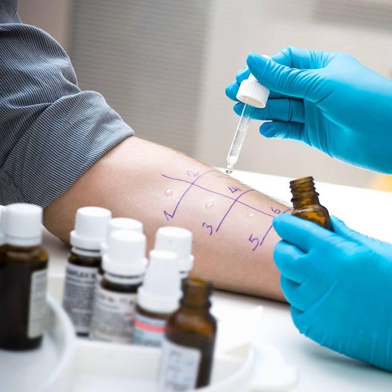 Кожные пробы на аллергены. где сделать аллергопробы в москве. цены на скарификационные пробы и другие пробы на аллергию
