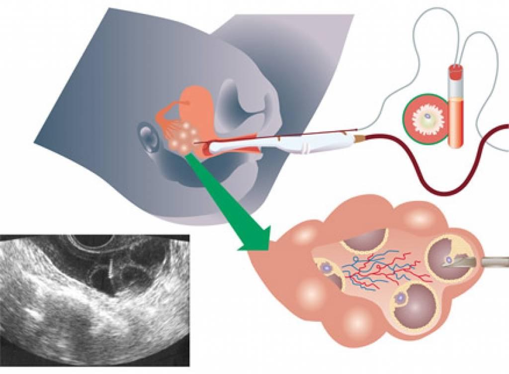 Процесс эко: от стимуляции суперовуляции до переноса и развития эмбриона | день имплантации эмбриона