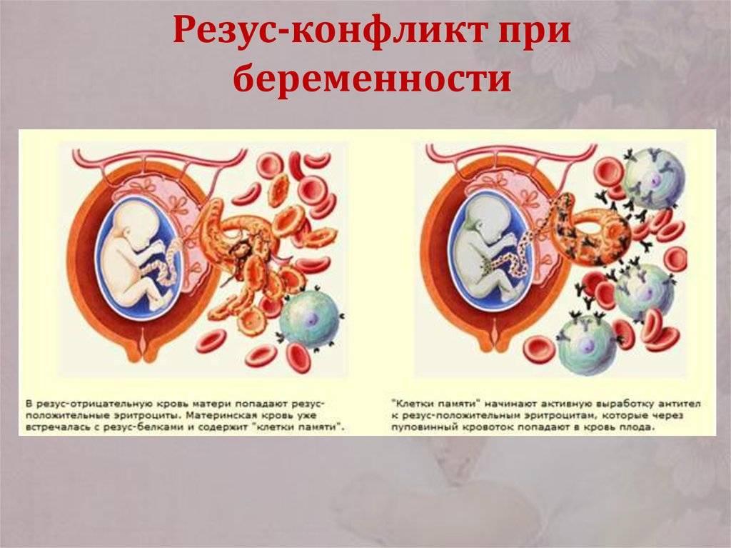 Отрицательный резус фактор у женщины при беременности, конфликт резус-факторов - полная таблица