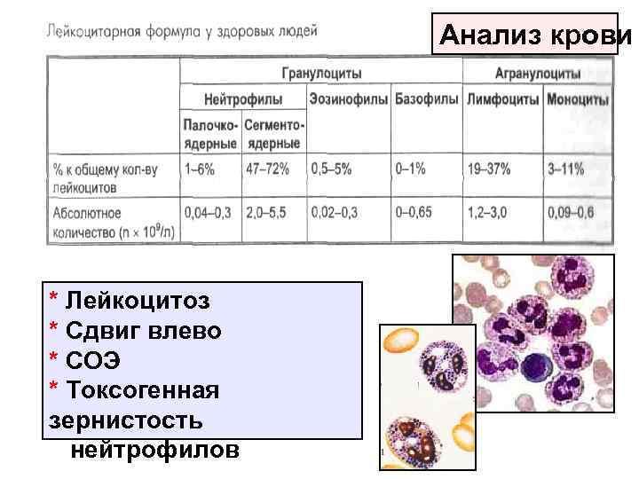 Расшифровка анализа: общеклиническое исследование назального секрета (риноцитограмма