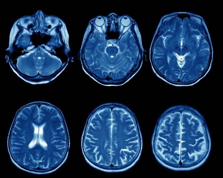 Цереброваскулярная патология | нейродети