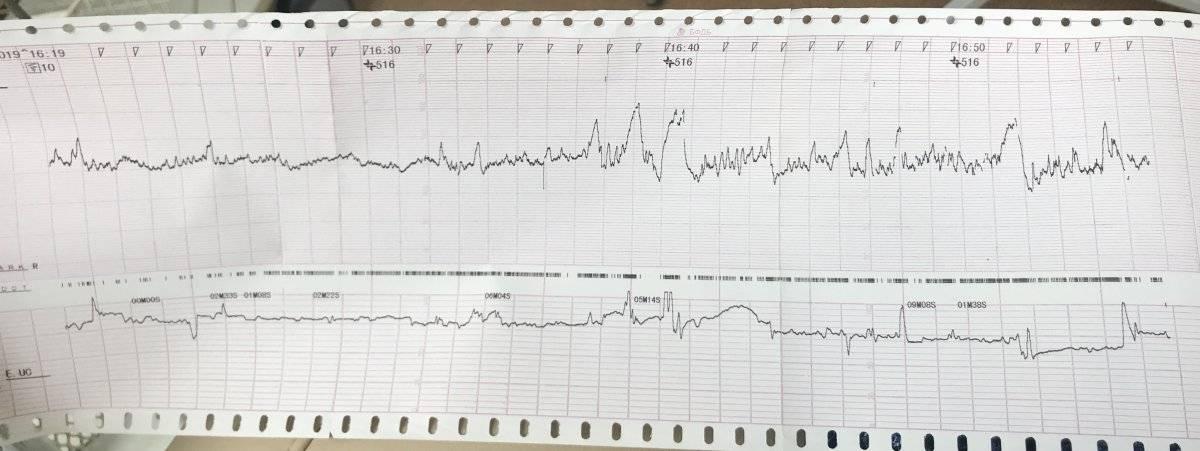 Ктг (кардиотокография)