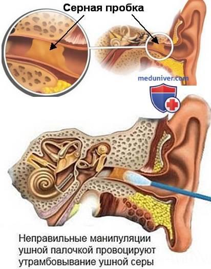 Заболевания наружного уха - серная пробка: причины возникновения, симптомы, медицинская помощь, лечение в москве
