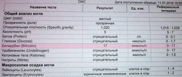 Кристаллурия в общем анализе мочи. норма и патология * клиника диана в санкт-петербурге