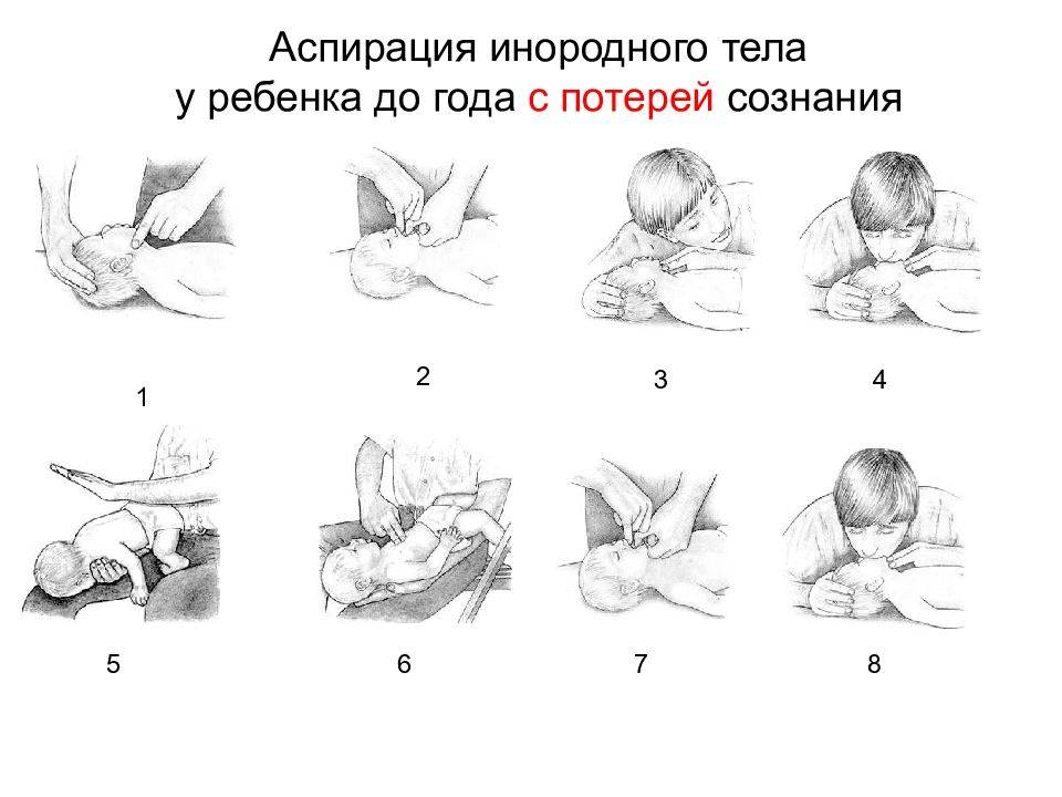 Что делать, если малыш подавился?