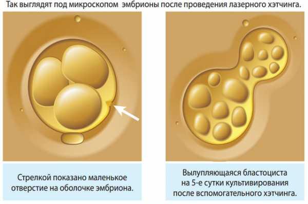 Осложнения диагностической эндоскопии