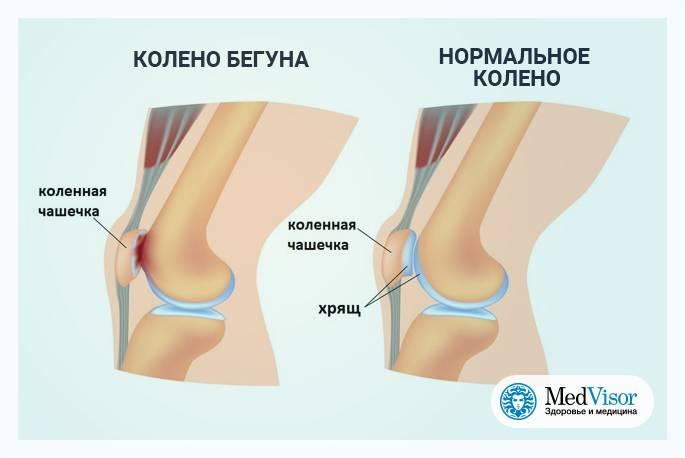 Боль в колене при ходьбе по лестнице - причины, характер болей, профилактика