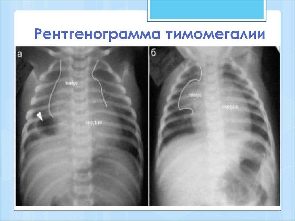Автореферат и диссертация по медицине (14.00.19) на тему:вилочковая железа у детей раннего возраста в норме и при патологических состояниях по данным ультразвукового исследования