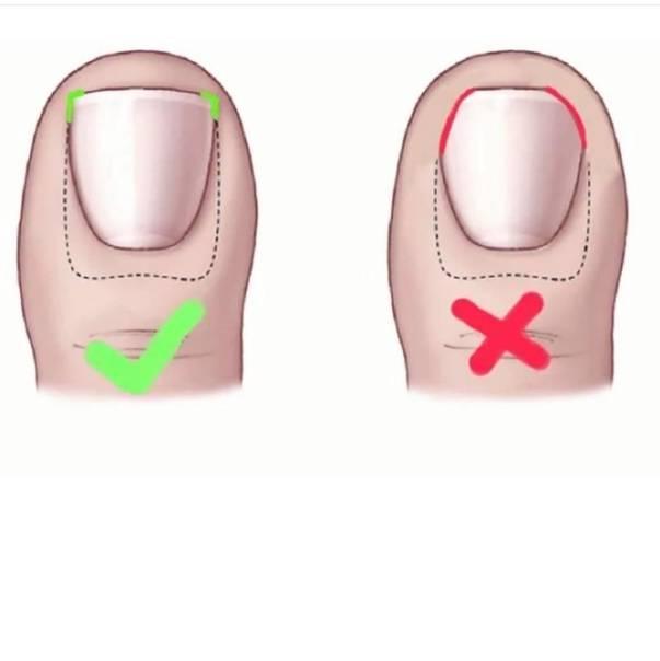 Онихокриптоз у грудничка: почему возникает и как лечить вросший ноготь?