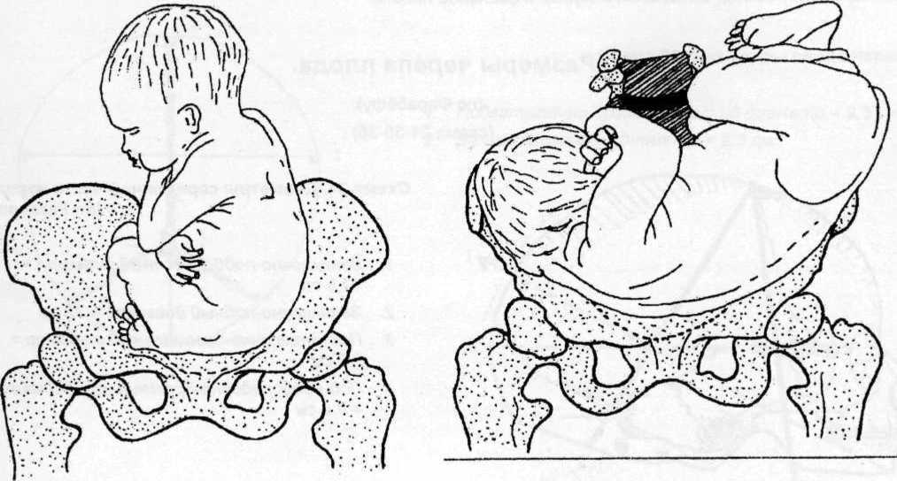 5 первых признаков родов, которые можно перепутать с ложными схватками