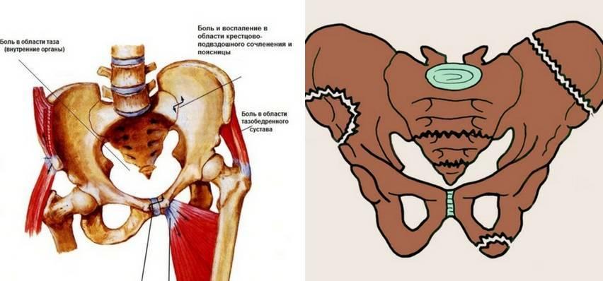 Симфизит: симптомы, причины, лечение