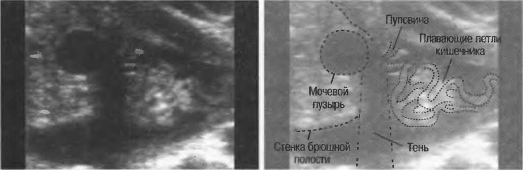 Гиперэхогенный кишечник у плода: диагностика и методы лечения