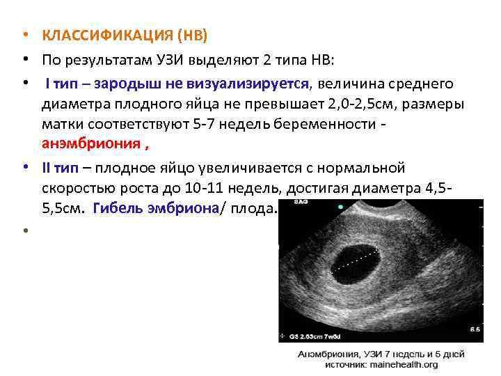 Беременна или нет? узи покажет, куда делся эмбрион