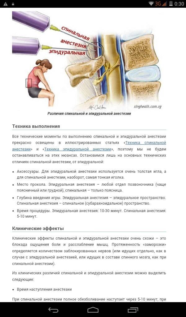 Buduaar - спинальная анестезия: плюсы и минусы