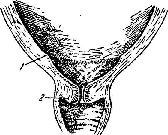 Длина цервикального канала у беременной: нормы, причины и виды патологий | образ жизни для хорошего здоровья