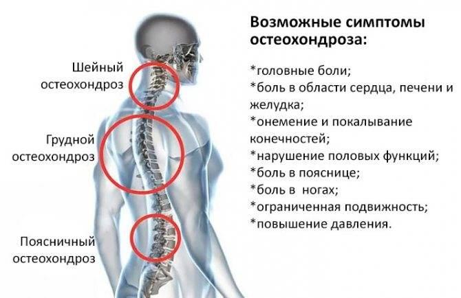 Шейный остеохондроз ️: симптомы, признаки и лечение остеохондроза шейного отдела