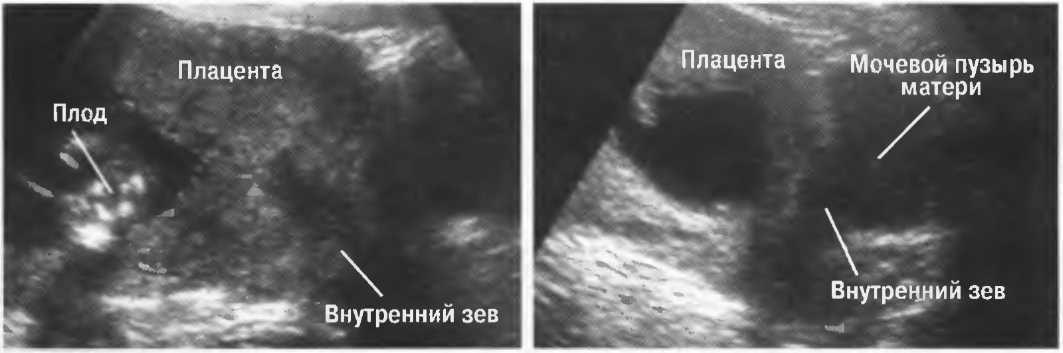 Узи шейки матки. цервикометрия. ицн. высокий риск преждевременных родов.