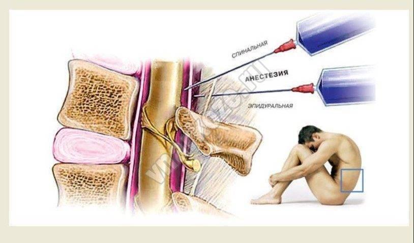 Девять мифов про «укол в спину»