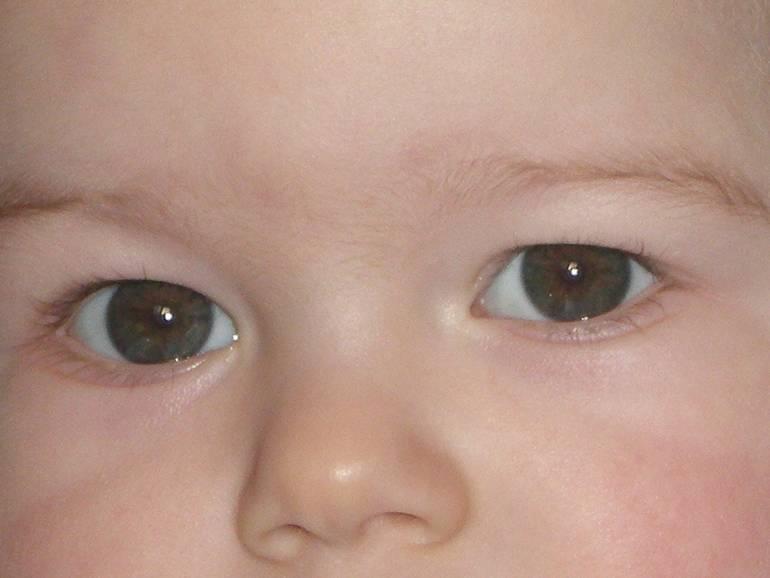 Когда у детей меняется цвет глаз: младенцев, новорожденных и во сколько