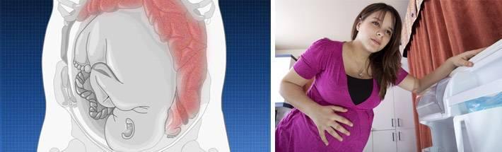 5 первых признаков родов, которые можно перепутать с ложными схватками - акушерство