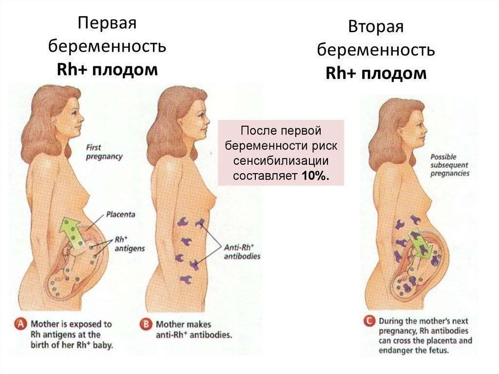 Боли в животе во время беременности