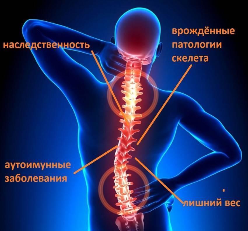 Остеохондроз позвоночника - симптомы и лечение   семейный доктор