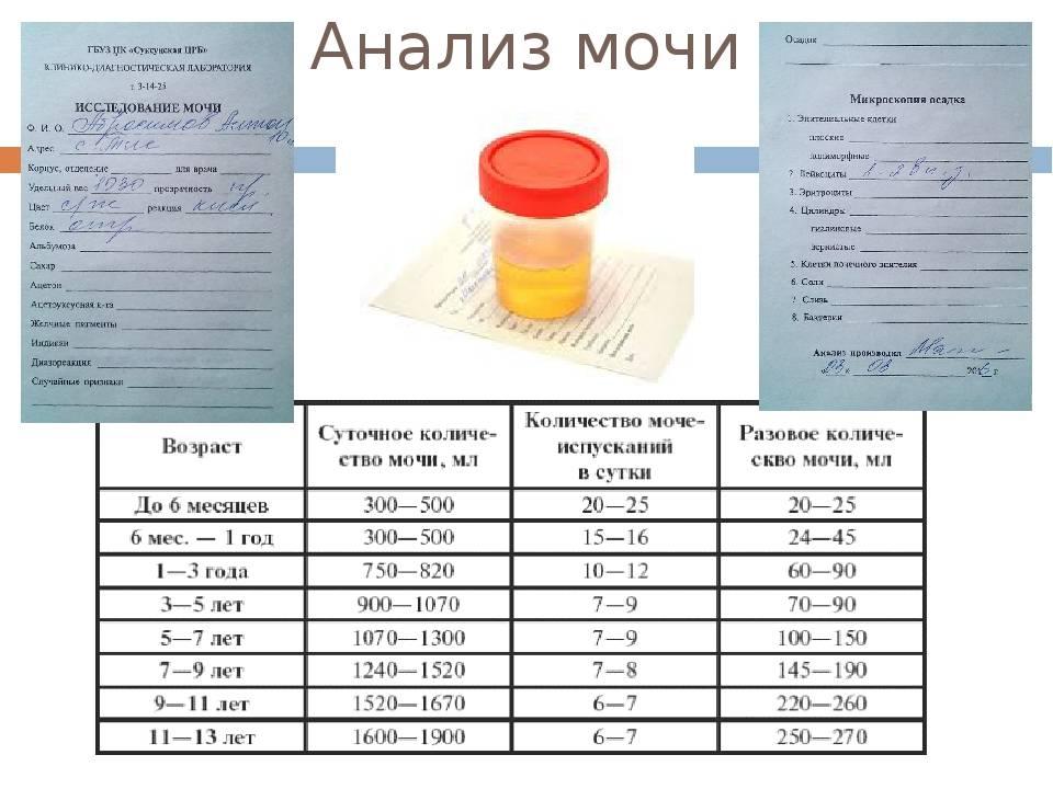 Готовимся к анализу, или как правильно сдавать кровь на сахар ребенку, чтобы получить точные результаты