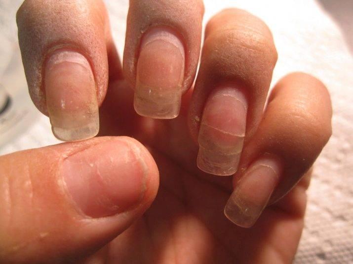 Можно ли наращивать ногти во время беременности?