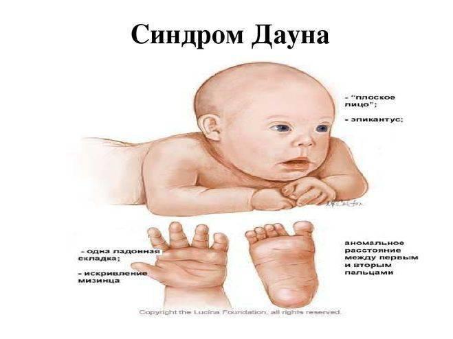 Помощь детям с генетическими нарушениями - реабилитация детей с синдромом дауна в центре логопед профи