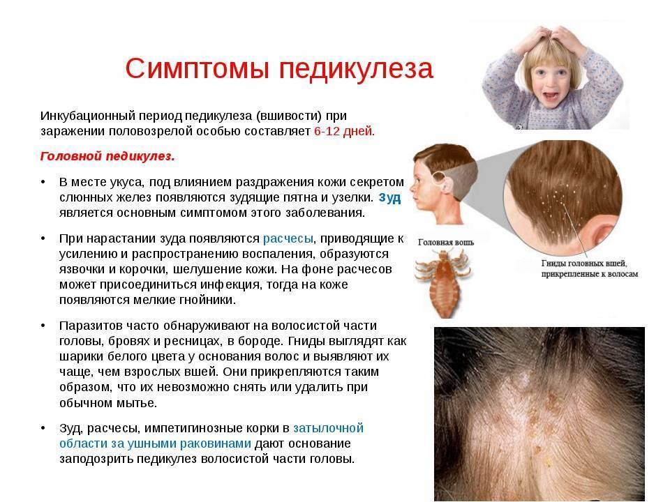 Себорея на голове у ребенка: причины, лечение, шампунь