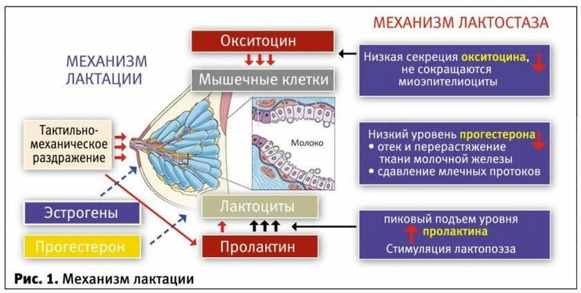 """Статья """"лактостаз у кормящей матери"""" - портал затылёнка"""