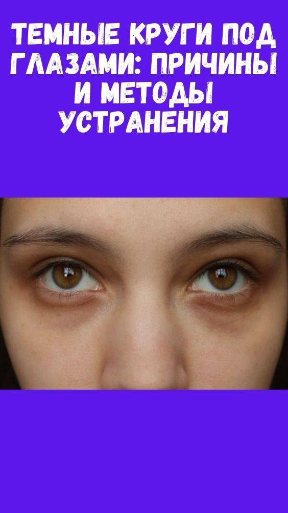 Пигментация роговицы глаза. причины цветовых пятен роговицы глаза, виды и возможное лечение