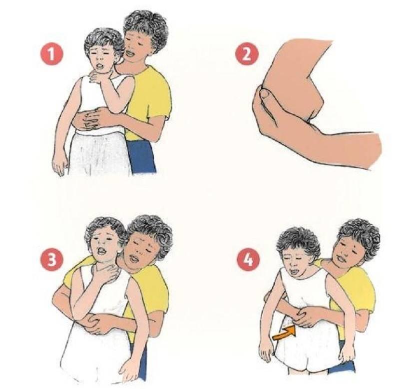 Знать всем родителям - первая помощь при асфикции у ребенка