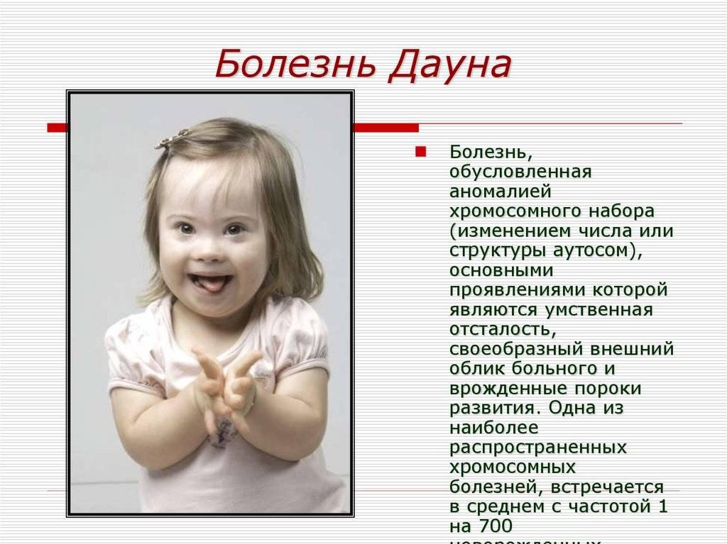 Все о синдроме дауна у детей