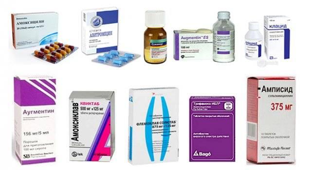 Отит у ребенка: симптомы, лечение, профилактика