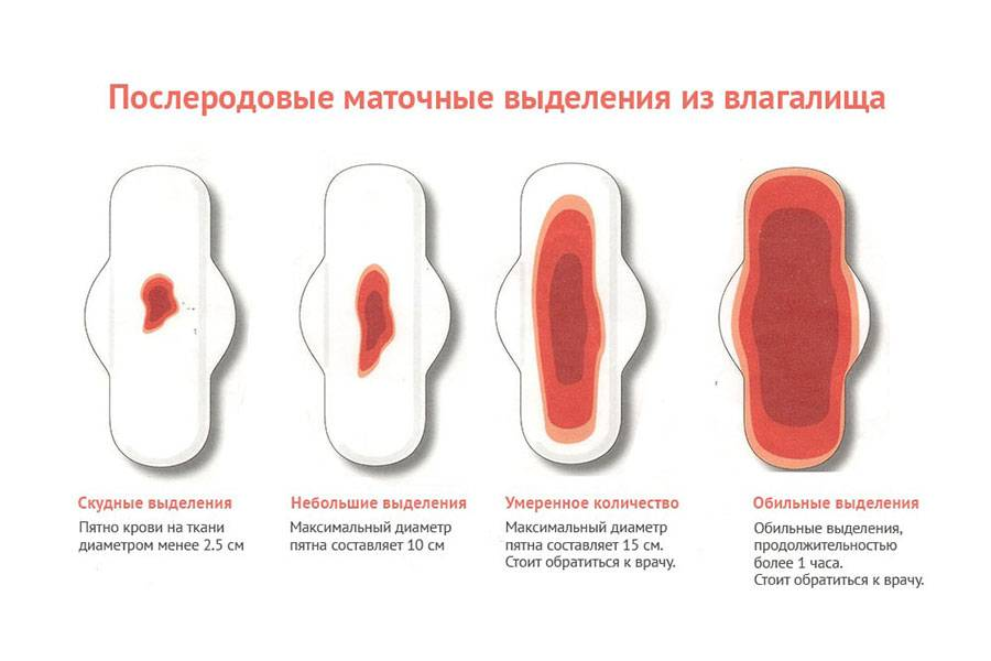 Все об имплантационном кровотечении