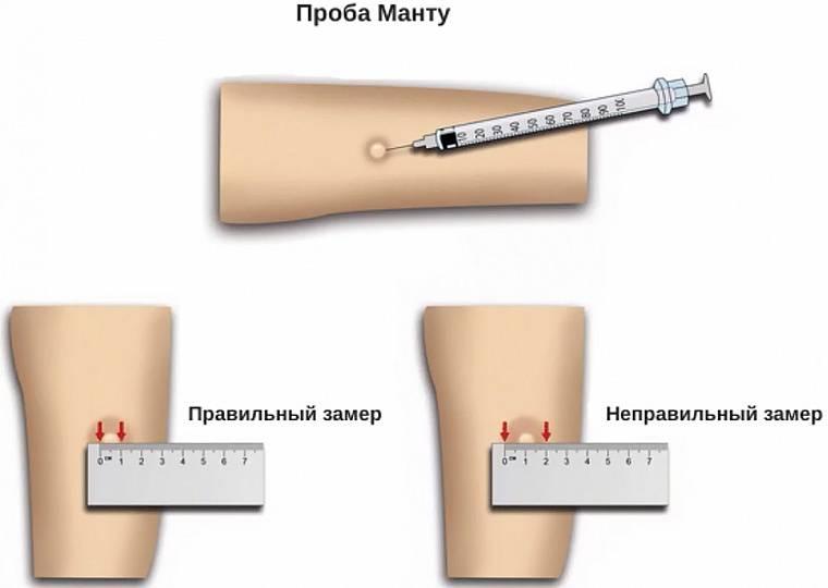 Как измерять манту