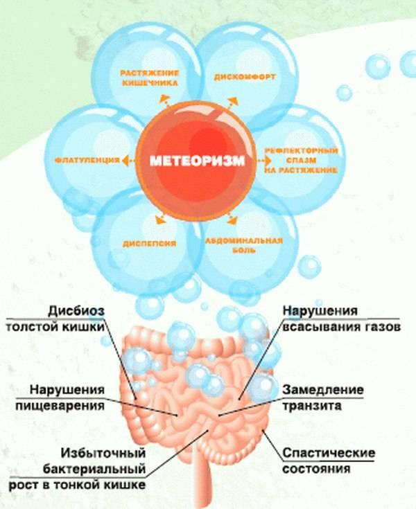Повышенное газообразование в кишечнике и желудке — причины, лечение
