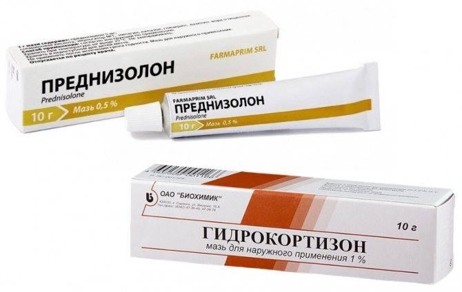 Мазь от аллергии для детей до 1 негормональные рейтинг