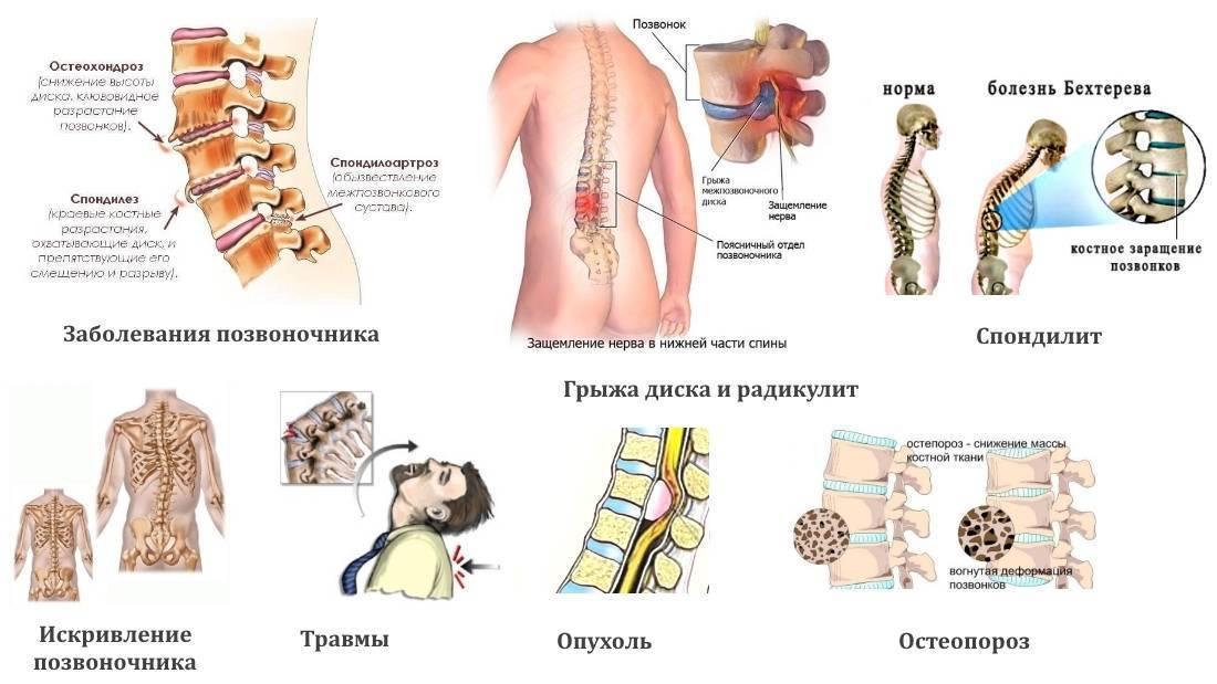 Симптомы болезни - боли в спине у ребенка
