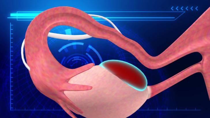 Как улучшить кровоток в матке при планировании беременности и перед переносом эмбрионов для ЭКО?