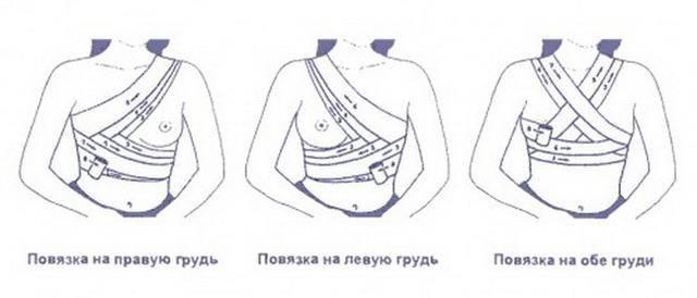 Как перетягивать грудное молоко правильно: инструкция, фото перевязки