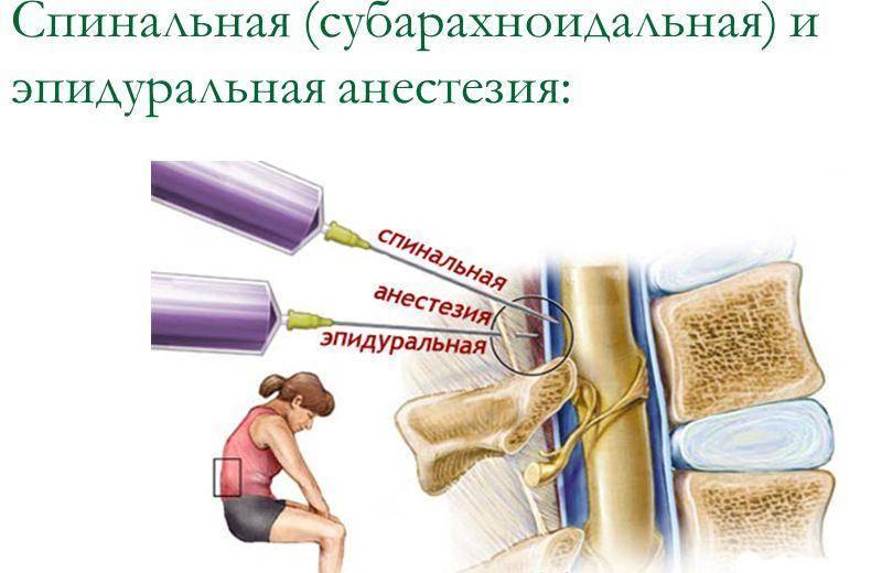 Отёк ног после спинальной анестезии: причины, лечение
