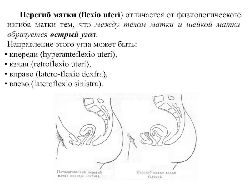 Какие симптомы сопровождают миому шейки матки, чем и насколько опасно заболевание при желании забеременеть и как его лечить