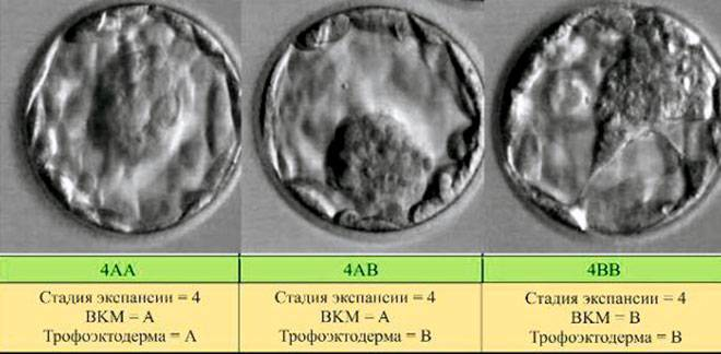Криоперенос по квоте омс 2021, список анализов, документы по переносу эмбрионов по омс  центр репродукции «линия жизни»