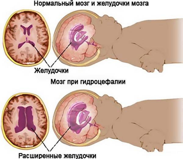 Нейросонография новорожденных, нсг, узи головного мозга